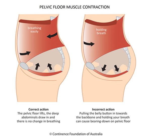 Pelvic floor muscle contraction